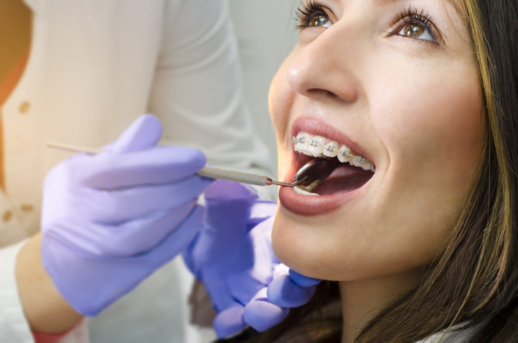 Closeup of smiling girl on dental braces check up