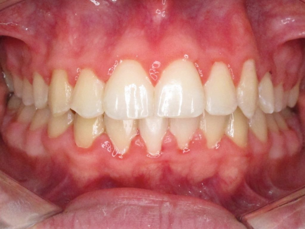 Maxim Teeth After